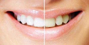 otbelivanie-pozheltevshih-zubov-300x152