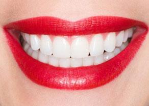 vyravnivanie-zubov-bez-breketov-ceny-foto-do-i-posle-otzyvy